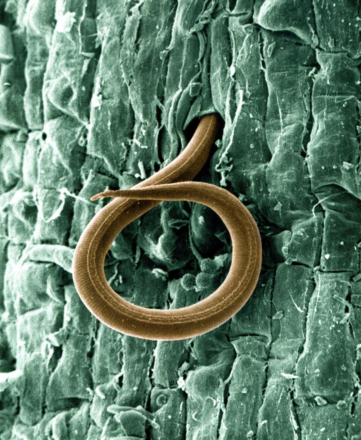 Diferența dintre nematode și cestode / Zoologie   Diferența dintre obiecte similare și termeni.