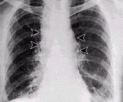 Inhalational anthrax - Mediastinal widening