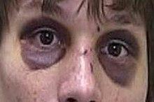 cracked nose bone