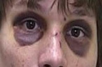 Raccoon eyes - Bilateral periorbital ecchymosis (raccoon eyes)