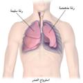 Blausen 0742 Pneumothorax-ar.png
