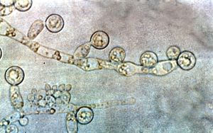 English: Candida albicans