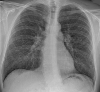Chest X-ray of sarcoidosis nodules.png