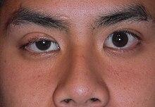 Ptosis Eyelid Wikipedia