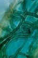 Ericaceen Ascomycet.tif