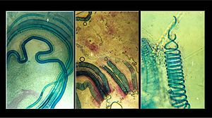 Vascular plant - Photographs showing xylem elements in the shoot of a fig tree (Ficus alba): crushed in hydrochloric acid, between slides and cover slips.