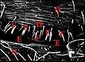 Fusules épigastriques d' Araniella.jpg