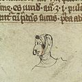 Head of a man with nasal polyps, 14th C Wellcome L0037336.jpg