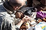 Malnurished Afghan Child.jpg