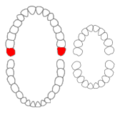 Maxillary third molars01-01-06.png