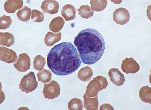 Monocyte - monocytes under a light microscope from a peripheral blood smear surrounded by red blood cells