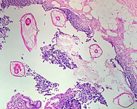Pinworms in the Appendix (1).jpg