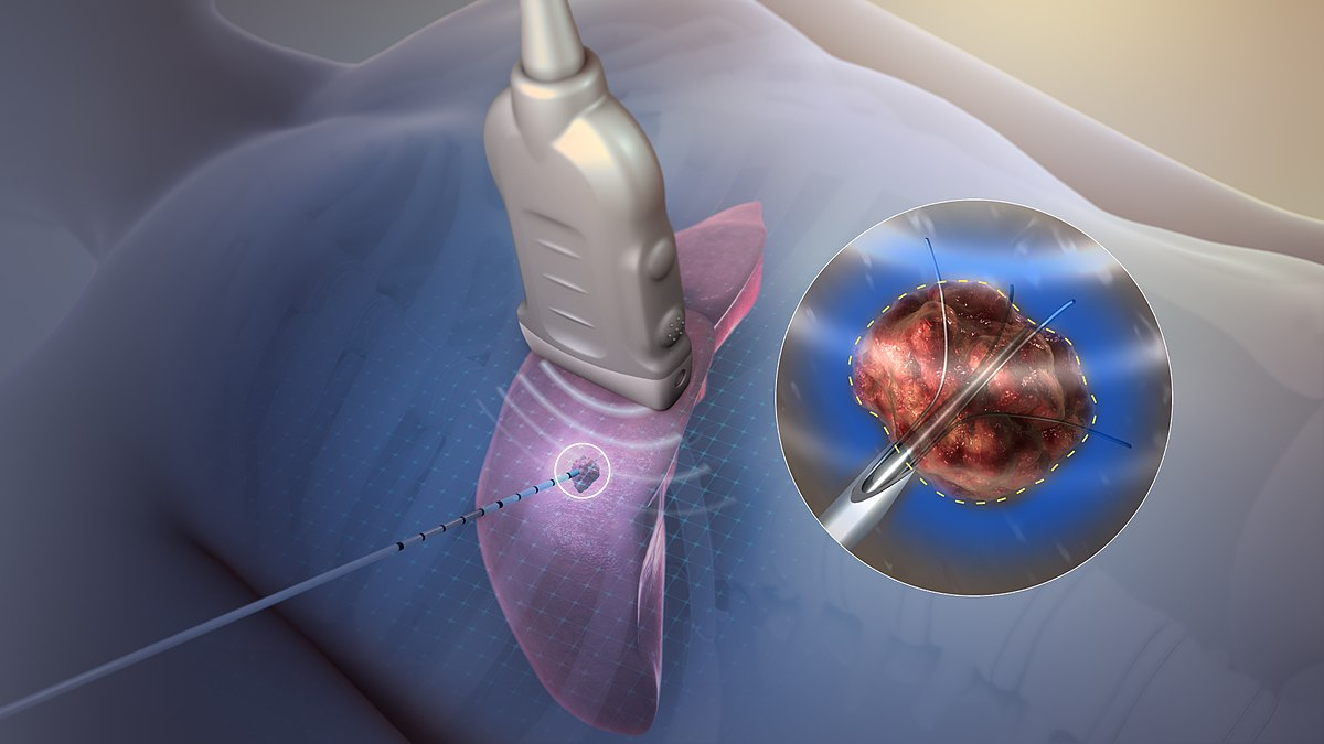 Radiofrequency Ablation Wikipedia