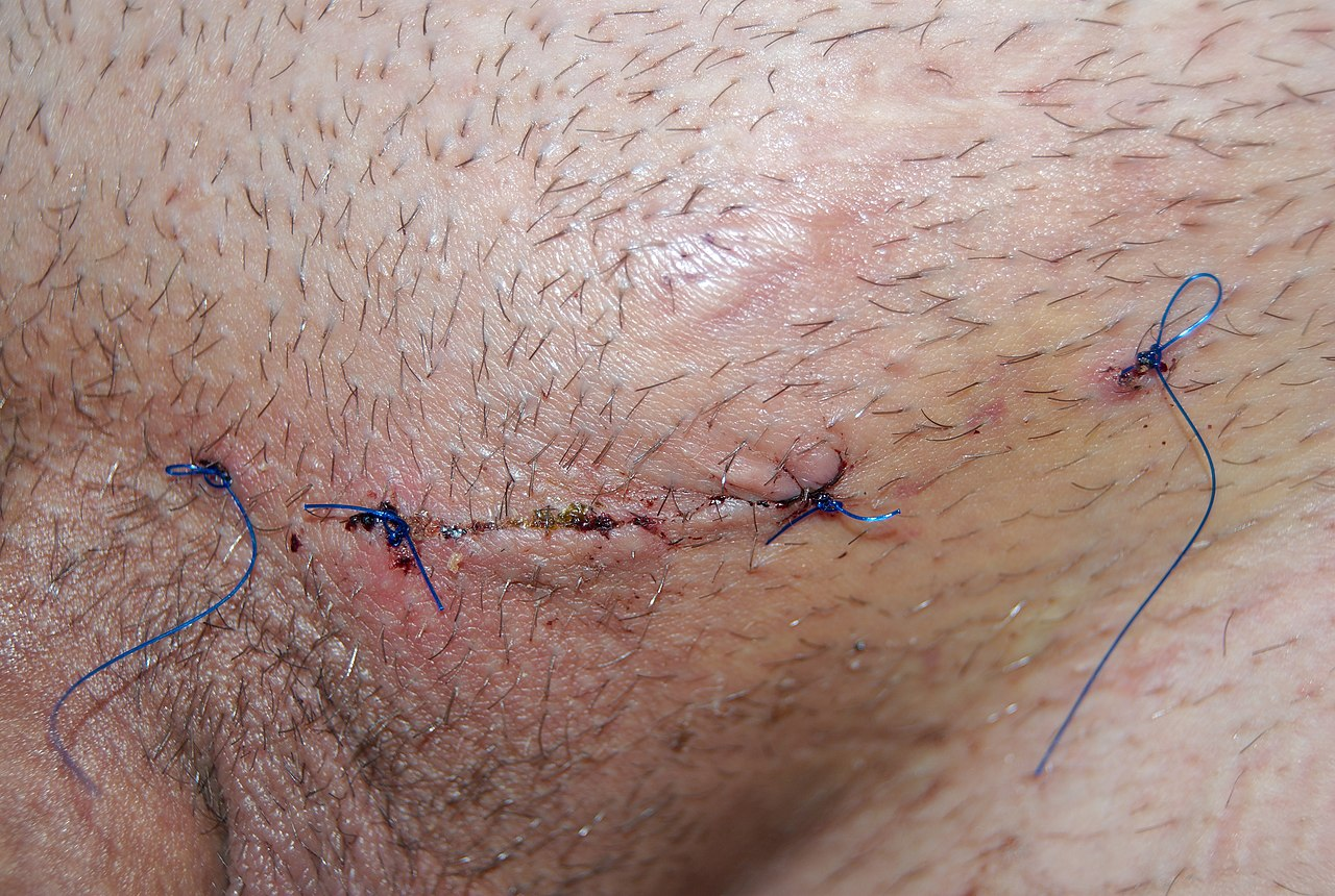 File:Sew up wou... Thrombosed Hemorrhoids