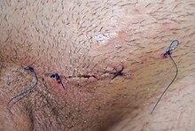 operación de venas varicosas nhs
