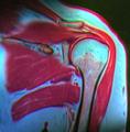Shoulder MRI 124712 rgbcb.png