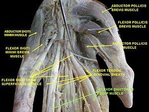 Flexor digitorum profundus muscle - Image: Slide 4BBBB