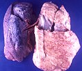 Small cell lung carcinoma simulating mesothelioma (4861507718).jpg
