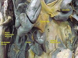 https://upload.wikimedia.org/wikipedia/commons/thumb/e/e6/Small_intestine_dissection.jpg/320px-Small_intestine_dissection.jpg