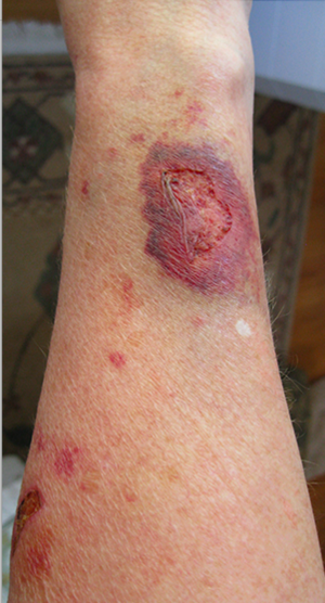 Steroid induced skin atrophy - Wikipedia