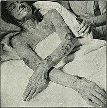 El baño medicinal atopichesky la dermatitis
