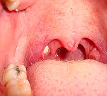 Tonsilloliths 20091119 prior to tonsillectomy.JPG