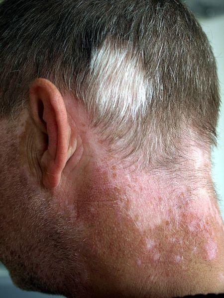 File:Vitiligo and Poliosis.jpg