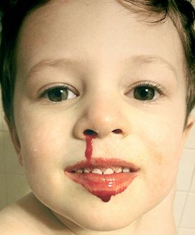 Young child with nosebleed, smiling cropped.jpg
