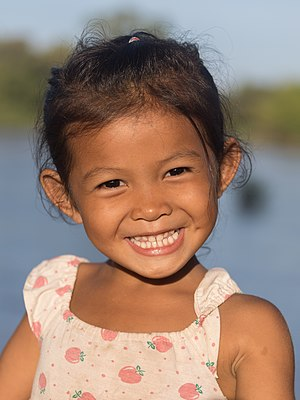 Young girl smiling with teeth in sunshine