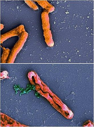 Antimicrobial peptides - Image: AMP action Ecoli