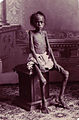 A famine victim boy in India (unknown date).jpg