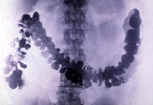 Barium - Amoebiasis as seen in radiograph of barium-filled colon
