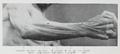 Braus 1921 183.png