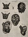 Cross-sections of seven different figures of the pregnant ut Wellcome V0014934.jpg