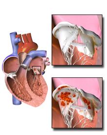Endocarditis - Wikipedia