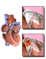 Endocarditis.png