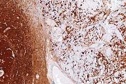 Image of gliosis in tissue