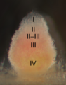 Indeterminate Nodule Zonation (labeled).png