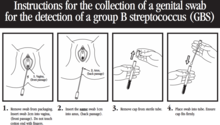 vaginal group b strep
