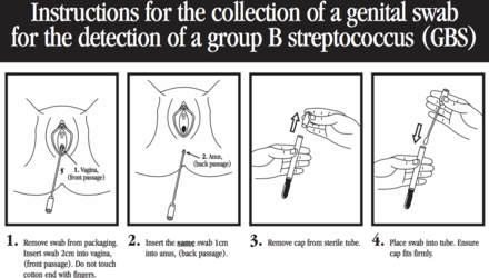 Group b strep in adult