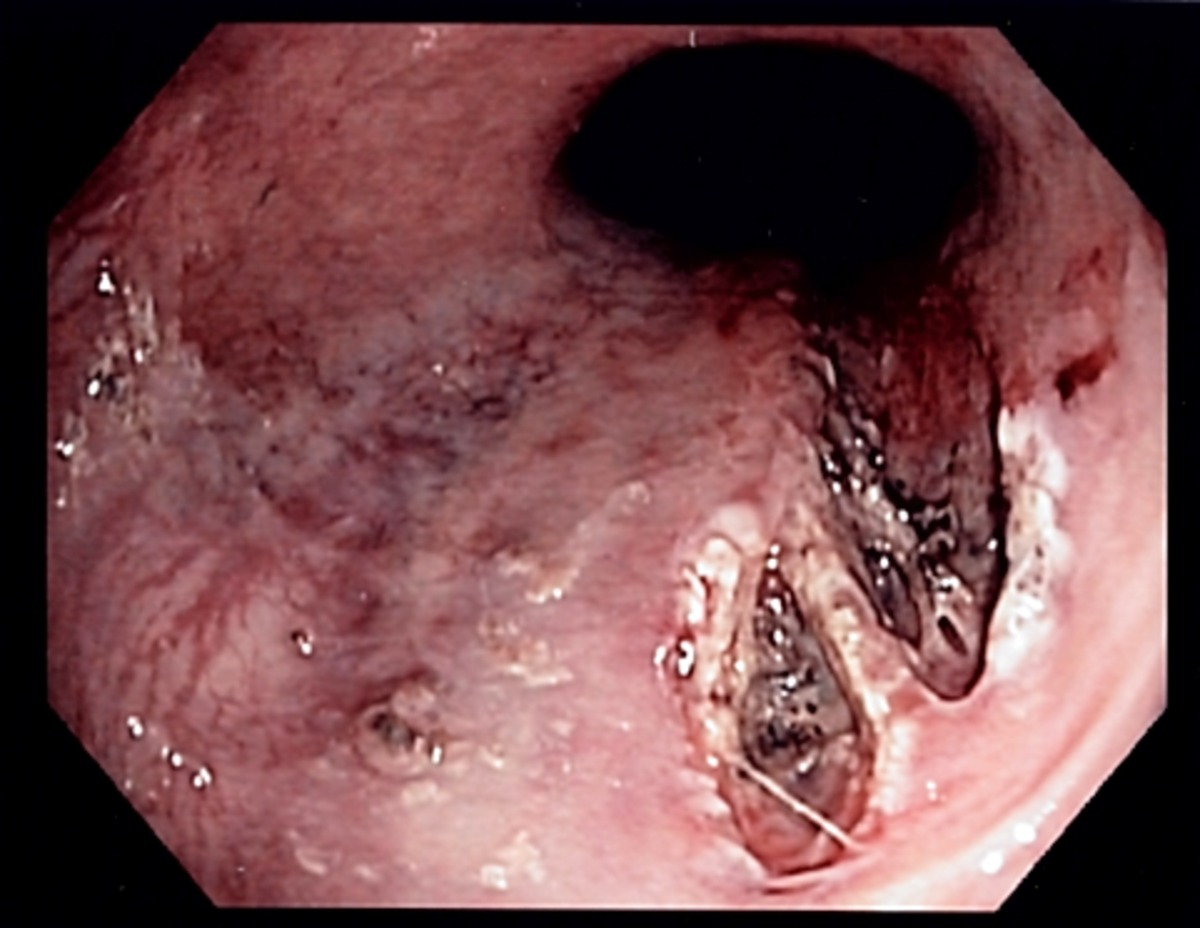 Image Result For Lung Cancer Vomiting
