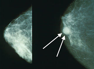 Breast cancer cancer that originates in the mammary gland
