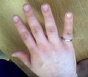 Order of the Engineer - The ring is worn on the little finger of the dominant hand.