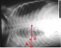 Pleural effusion Chest x-ray of a pleural effu...