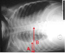 An X-ray showing a chest lying horizontal. The lower black area which is the right lung is smaller with a whiter area below it of a pulmonary effusion. There are red arrows marking the size of these.