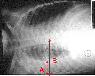 Radiografia del torace che mostra un importante versamento pleurico (A) che occupa più della metà dell'emitorace destro (B).