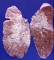 Radiation pneumonitis (4710034634).jpg