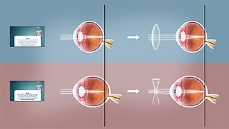 Refractive error - Top: farsighted corrected using convex lens Bottom: nearsighted corrected using concave lens.