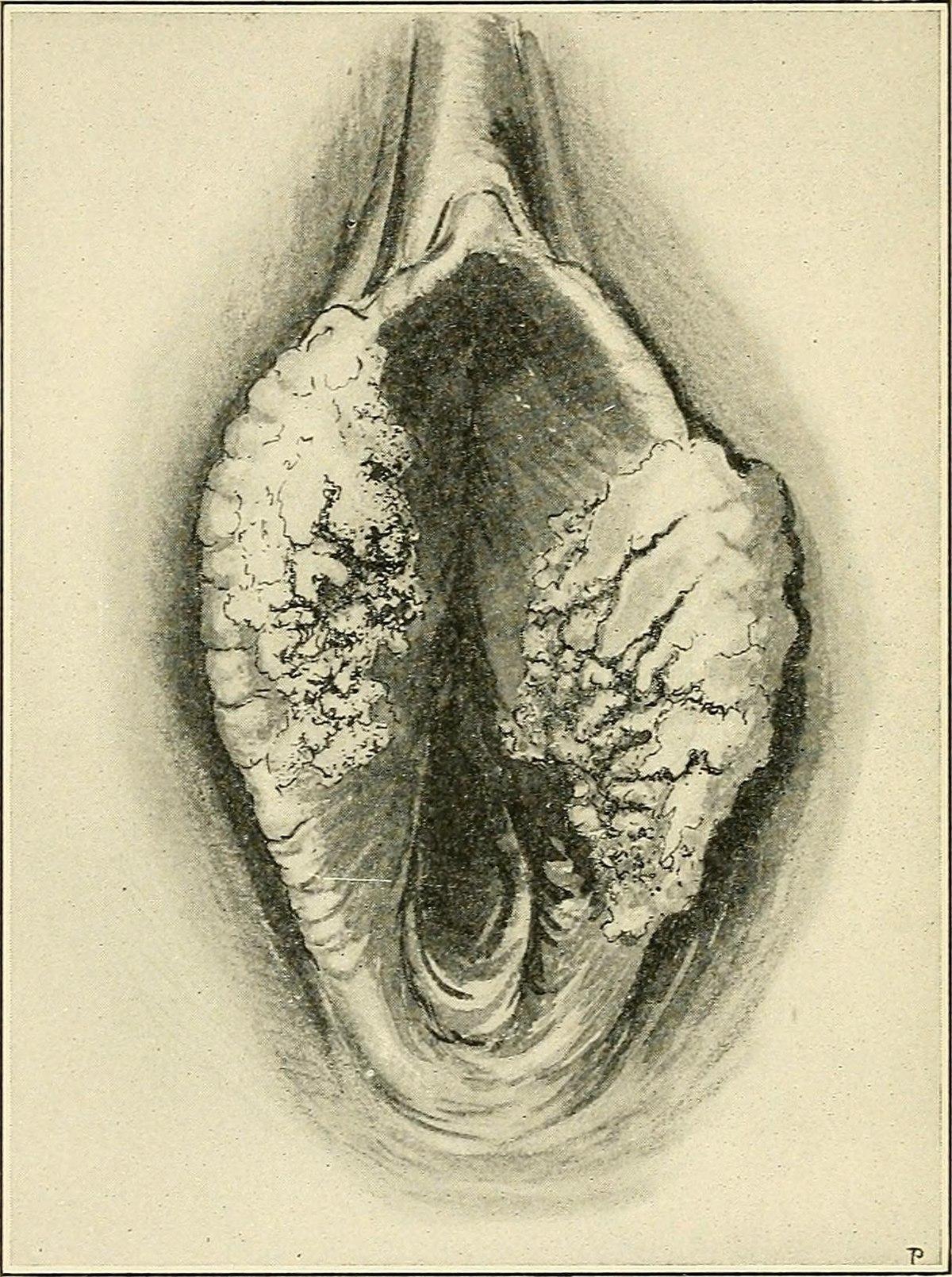 papillomavírus és vulva rák