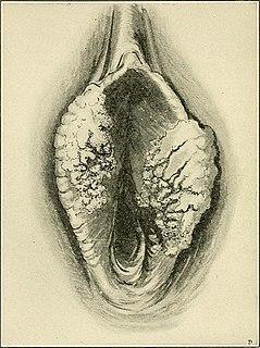 Vulvar cancer Cancer involving the vulva